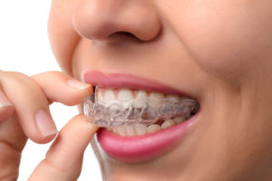 invisalign treatment - orthodontics